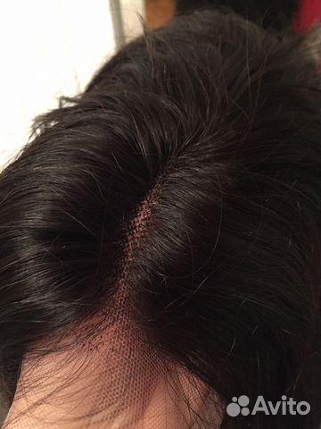системы волос купить в москве